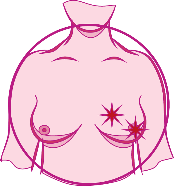 Breast or Nipple Pain
