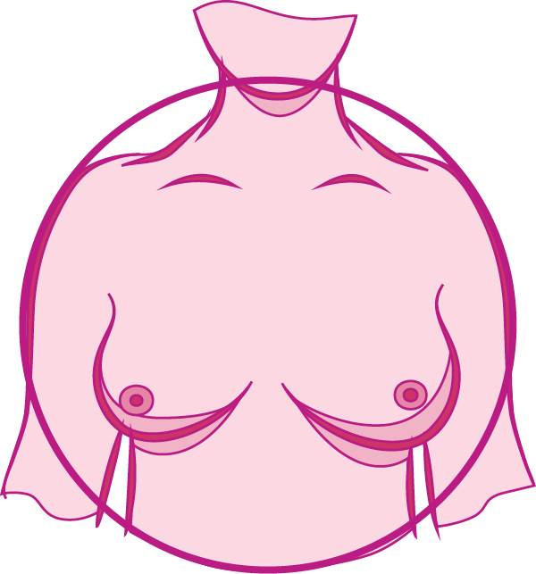 Swelling of all of the breast